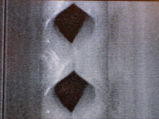 Vidéokymogramme de la vibration des plis vocaux d'un chanteur amateur, à l'acmé d'un 'messa di voce' (2 cycles vibratoires).