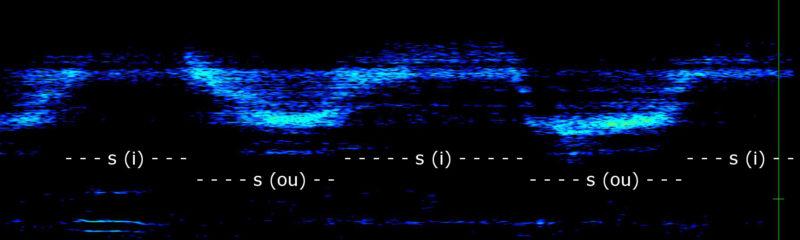 fig 7 : exercice de coloration du « s » (i et ou) ; échelle 8 kHz